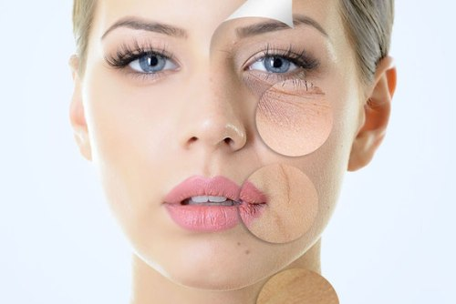 Lidstraffung Ohne Op Sigonis Haut Und Kosmetikinstitut