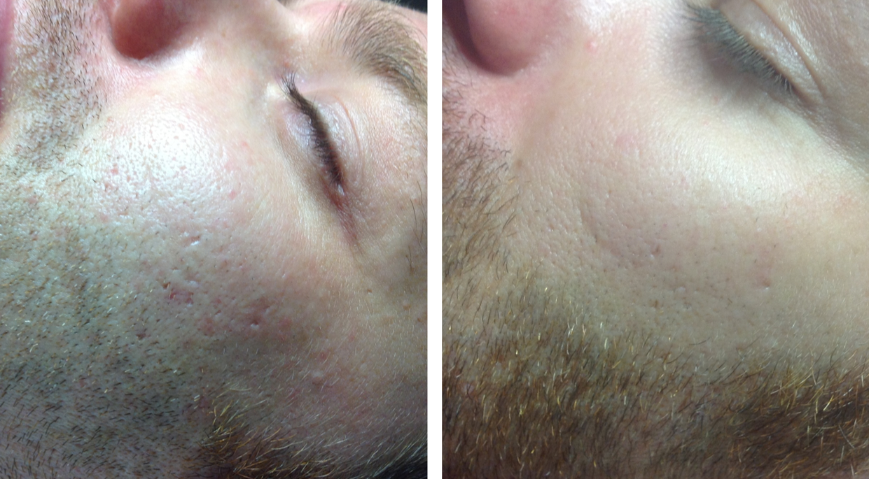 Vorher-Nachher-Bilder - Sigonis Haut- und Kosmetikinstitut